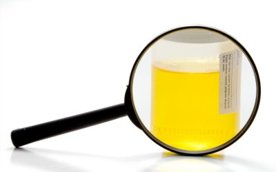 Should I take a drug test if injured on the job in NC?